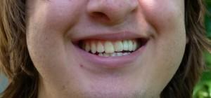 Po ukončení ortodontické léčby se zubní náhradou - zubním můstkem