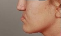 Před chirurgickým posunem čelistí