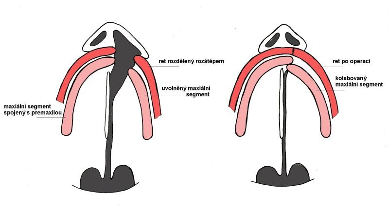 Nákres jednostranného rozštěpu cekového před suturou rtu a po ní, kdy kolaboval uvolněný segment horní čelisti (maxily)