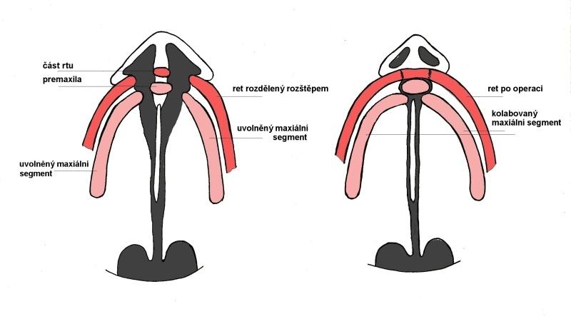 Nákres oboustranného rozštěpu celkového, kdy po operaci rtu kolabovaly za premaxilu oba segmenty a maxilu vytlačily dopředu.